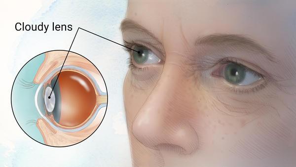 cataract anatomy